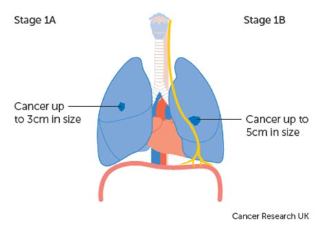 Our Approach - Lung Cancer - Siteman Cancer Center